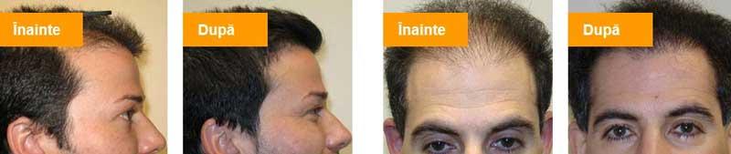 vitahair-max-rezultate-tratament